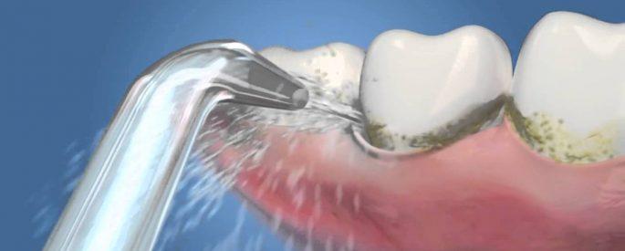 cách vệ sinh răng miệng hiệu quả
